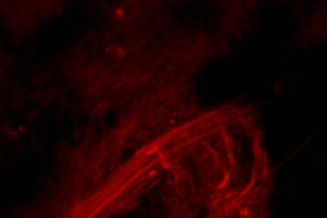 Photographing the Black Hole at the Center of the Galaxy