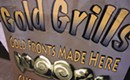 Gold Grills shine