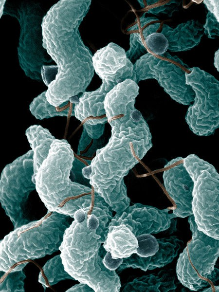 Keep your Campylobacter jejuni under 140 characters