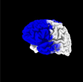 The blue sections represent areas of abnormally low brain activity in an ME patient. - DEPAUL CENTER FOR COMMUNITY RESEARCH
