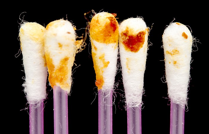 One type is the yellow-brown sticky kind called wet earwax.