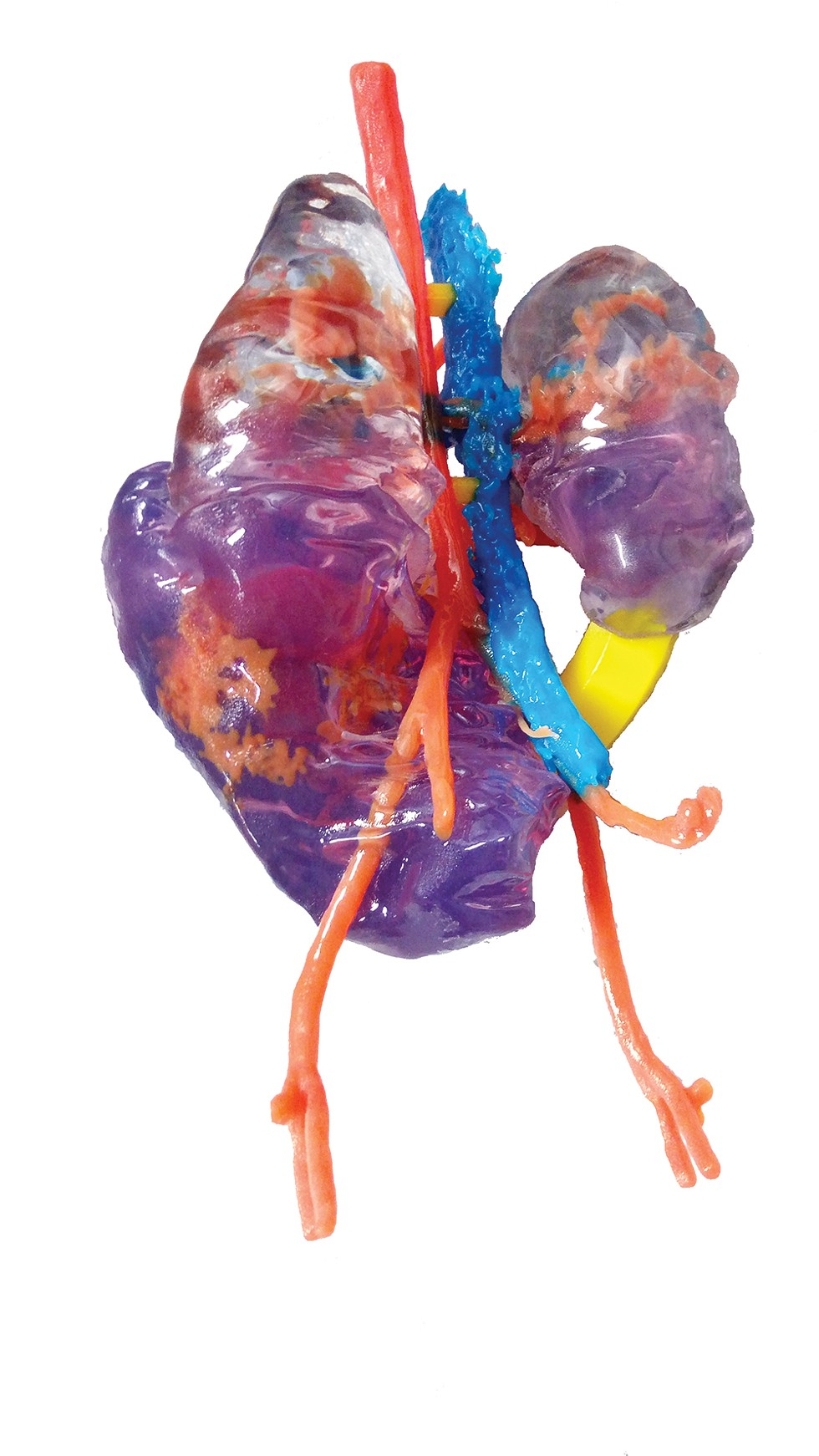 Model of a child's kidney with tumor tissue, 3D-printed by Mediprint to help doctors plan surgery and delineate the boundaries between the cancer (translucent purple) and the organ (clear).