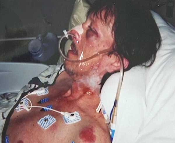 Pat Mahaney after the beating last August.