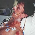 "The Ohio Man who was Beaten by ""Bored"" Teenagers Last Year Has Died"