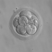 Ohio Judge Rules Embryos Are Not People in University Hospitals Case