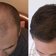 Folital Reviews - Is Folital Hair Growth Supplement Safe & Effective? User Reviews!