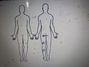 Diagram showing where Jaimeson Cody was tased on the back of his left leg after being tased at least twice on the front of the same leg.