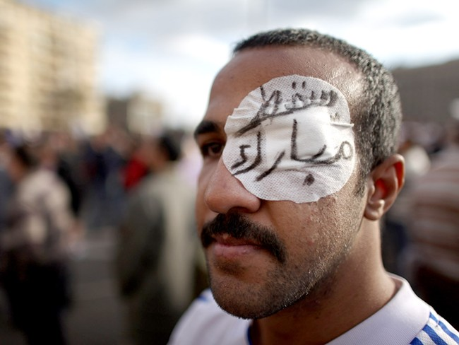 A protestor in Egypt, with 'Go, Mubarak' written on his eye bandage - GETTY IMAGES