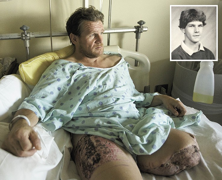 Chuck Lawrence passes the time in his hospital reliving the past 20 years of hitchhiking and hopping trains. A skin graft taken from his right thigh was used to treat his severed limb. INSET: A yearbook picture, dated 1993, showing him as a high school sophomore. - YOUNG KWAK