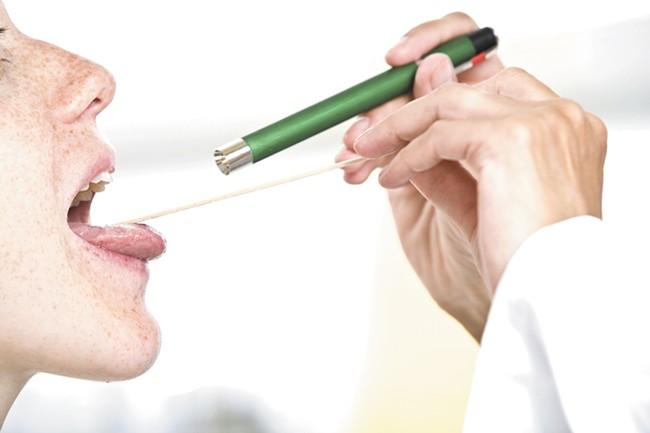 Eight Spokane-area Albertsons/Sav-On pharmacies are now offering testing for strep throat.