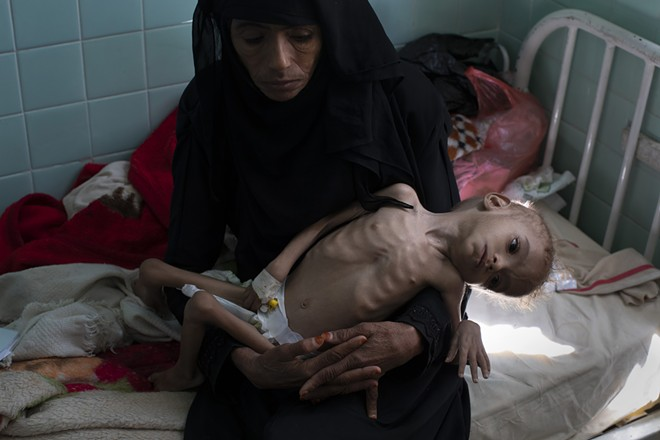 Bassam Mohammed Hassan, who suffers from severe malnutrition and cerebral palsy, is held by Madiya Ahmad, at a hospital in Sanaa, Yemen, on Oct. 15, 2018. Growing international concern over the dire humanitarian situation in Yemen, where the United Nations warns that a mass famine is looming, led to a concerted diplomatic push late October by the U.S. to finally get both sides around the peace table. But the pace of fighting has only escalated. - TYLER HICKS/THE NEW YORK TIMES