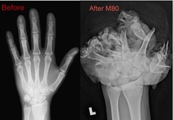An X-ray of a human hand, before and after an M-80 exploded in it. - TALSANIAHANDS.ORG PHOTO