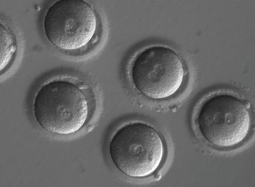 In an undated handout image, newly fertilized eggs before gene editing. In a major milestone sure to renew ethical concerns, scientists have successfully edited genes in human embryos to repair a common and serious disease-causing mutation, producing apparently healthy embryos, according to a study published in Nature on Aug. 2, 2017. - SHOUKHRAT MITALIPOV VIA THE NEW YORK TIMES