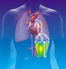 lung-pump.jpg