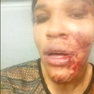 Trans woman attacked in Dearborn bar, prompting renewed focus on hate crimes