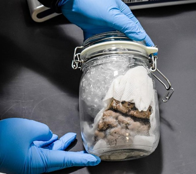 Human brain found inside a glass jar. - CUSTOMS AND BORDER PROTECTION