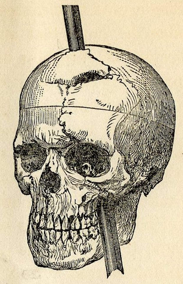 The case of Phineas Gage, 1823-1860, who survived for 12 years after a 1¼-inch diameter iron rod pierced his brain, made an early, gruesome contribution to our understanding of brain function. The accident changed his character completely. - DR. JOHN HARLOW, 1868