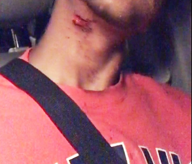 The wound on the 16 year old's neck that led to his being airlifted to the Bay Area for emergency care. - SUBMITTED