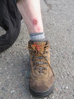 A healing scar on a MAC resident's leg. - LINDA STANSBERRY