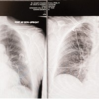 "Right: X-ray taken in the ER soon after my accident shows all five lobes of my lungs (white spidery lines) filling up my entire chest cavity. Left: By the next morning my right superior lobe (top left) had collapsed. ""What's that white blob in the middle?"" I asked. ""Your heart."""