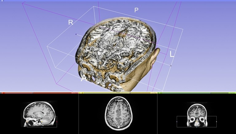 CROSS SECTION:  Using a free medical software program created in Brazil, Balzer was able to convert Scott's MRI and CT scans into useable 3-D images. - IMAGE COURTESY OF MICHAEL BALZER