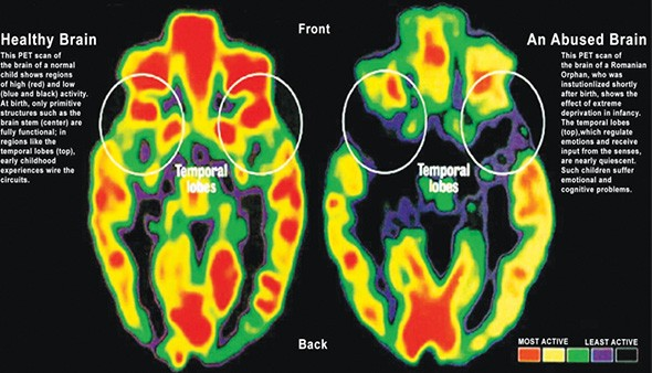 A PET scan shows the difference between the brain of a healthy child and the brain of a child who has experienced multiple ACEs. - PROVIDED