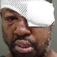 Markeith Loyd is permanently blind in his left eye