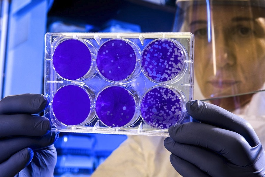 Scientist tests coronavirus samples - PUBLIC DOMAIN/EDITORIAL USE ONLY