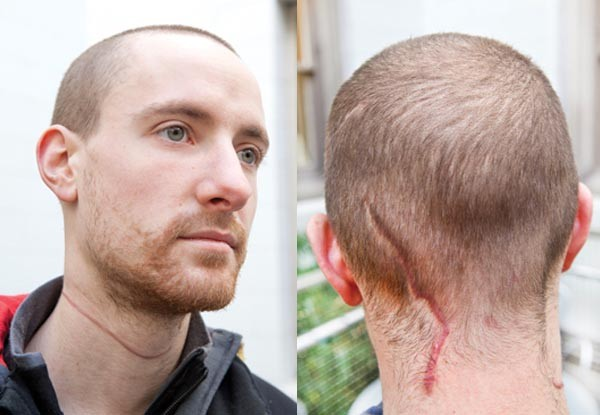 Colin Albright's scars from a Sept. 5 attack - PHOTO BY HEATHER MULL