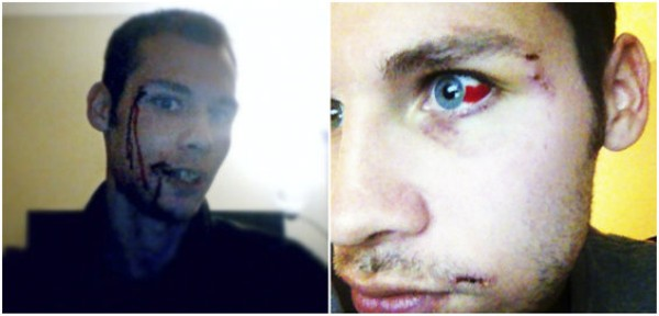 Brandon Pavelich just after the attack, and a few days afterward. - COURTESY BRANDON PAVELICH