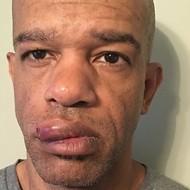 Second Trial of Ex-St. Louis Cops Accused in Beating Black Detective Begins