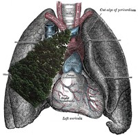A artist's rendering of Sidorenko's lungs, had the tree not been removed. Not to scale.