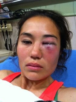 Ashley DePew says her face was fractured in two places. - FACEBOOK