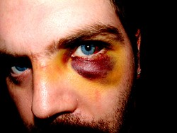 Man looks like he got hit by a train, light rail, the police.