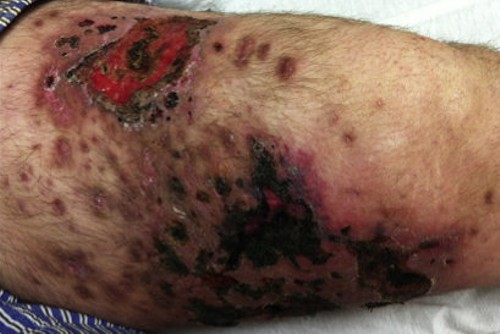 This is what Krokodil use looks like. - AMERICA JOURNAL OF MEDICINE
