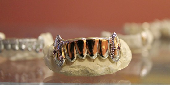 One of the grillz from STL Grillzz - RAY DOWNS