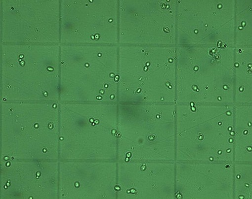 """The dreaded -- or is it? -- brettanomyces - USER """"MAXDESBACCHUS,"""" WIKIMEDIA COMMONS"""