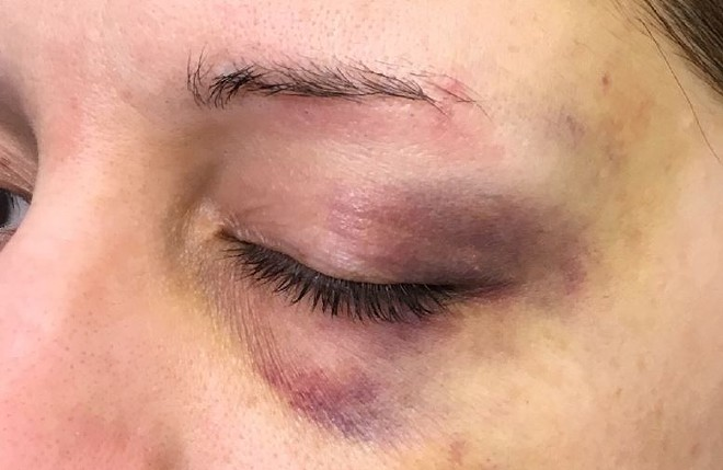 Courtney Wilson says these photos were taken after an incident left her battered and bruised. - COURTESY OF CHELSEA MERTA