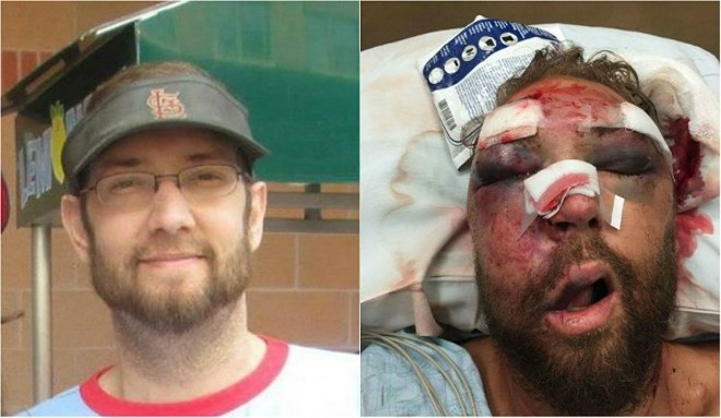 Rob Ludwig was badly beaten after his girlfriend tried to stop harassment of a young neighbor. - COURTESY OF ROB LUDWIG