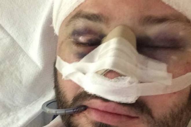 A Delmar Loop bartender was the victim of an attack and attempted robbery on August 23. - PHOTO VIA GOFUNDME.