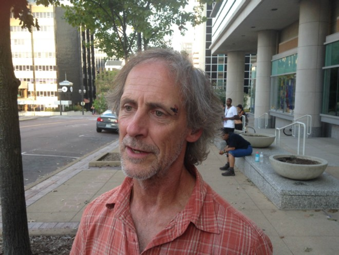 Jeffrey Stack says he hit his head when a police officer tackled him in the St. Louis Galleria. - PHOTO BY DOYLE MURPHY