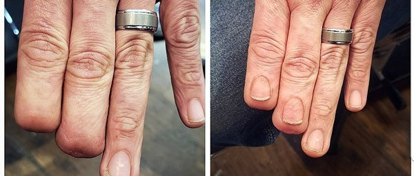 His Hyper-Realistic Fingernail Tattoo Went Viral. Now He Plans to Help More People