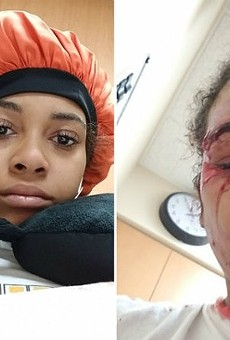 Vanity Allen before her run-in with an SSM security guard (left) and after (right).