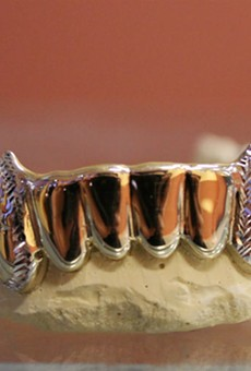 One of the grillz from STL Grillzz
