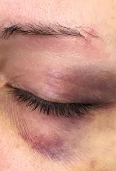 Courtney Wilson says these photos were taken after an incident left her battered and bruised.