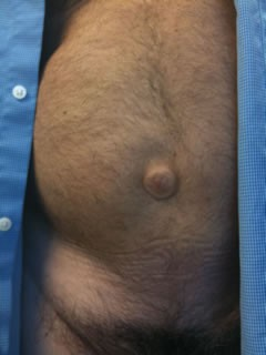 An umbilical hernia. Not Doug Stanhope's. - HTTP://WWW.DOUGSTANHOPE.COM/