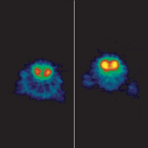 A sample PET scan. The image on the right is brighter, which means it shows lower dopamine levels. - COURTESY WASHINGTON UNIVERSITY