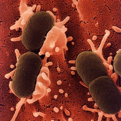 escherichia_coli.jpg