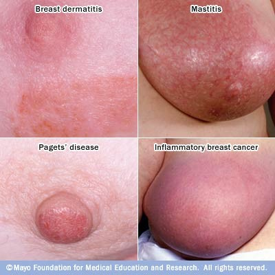 All forms of breast cancer are not the same. - IMAGE VIA