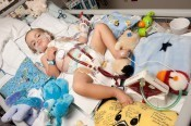 Owen Stark uses an artificial lung - COURTESY ST. LOUIS CHILDREN'S HOSPITAL